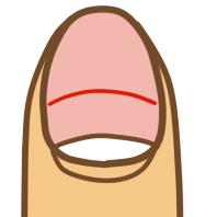 爪の健康状態03