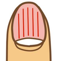 爪の健康状態02