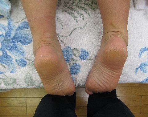 捻挫の脚の長さ