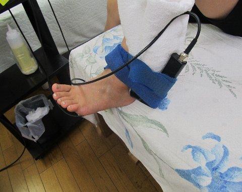 超音波捻挫治療