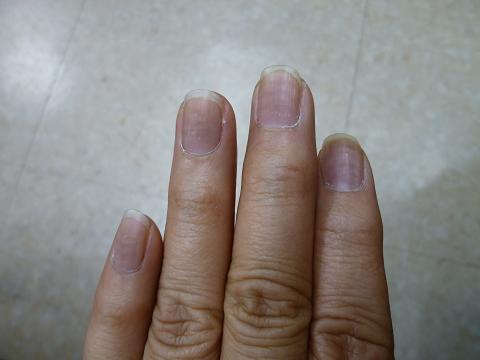 爪シマシマ