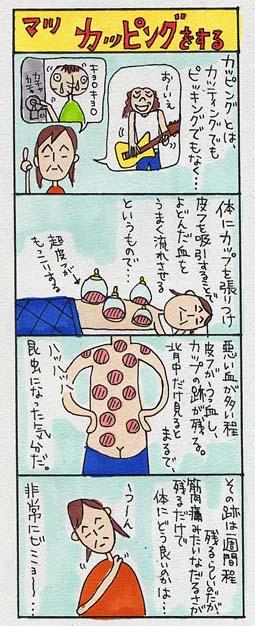 cupping.jpg