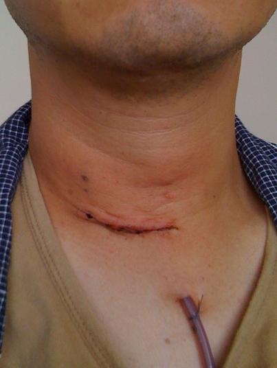 が ん 手術 甲状腺