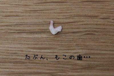 たぶんもこの歯。