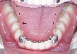 舌の大きさC