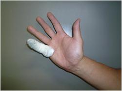手の怪我1