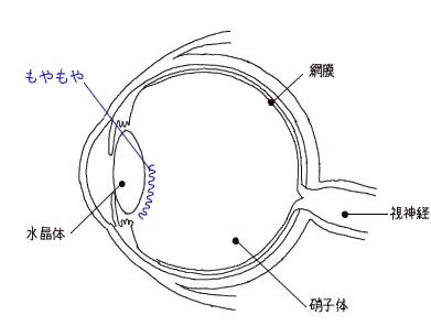 むーの目3