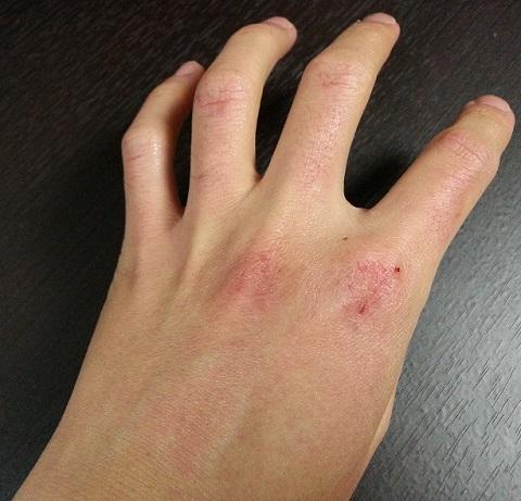 ヴァセリン使用前の左手
