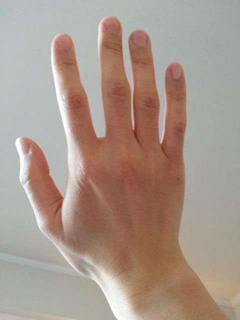 ヴァセリン使用後の右手