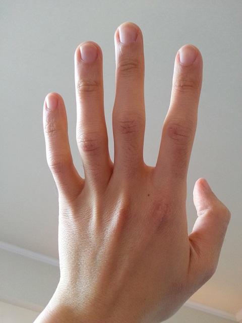 ヴァセリン使用後の左手