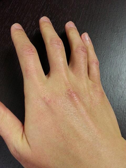 ヴァセリン使用前の右手