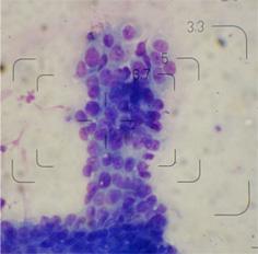 ネコの肛門の腫瘍5