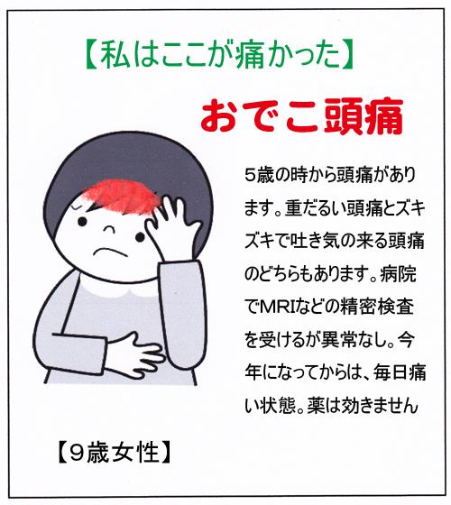 (おでこ頭痛)