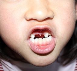 Natsu tooth
