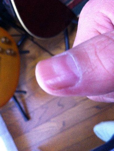 Finger130209.jpg