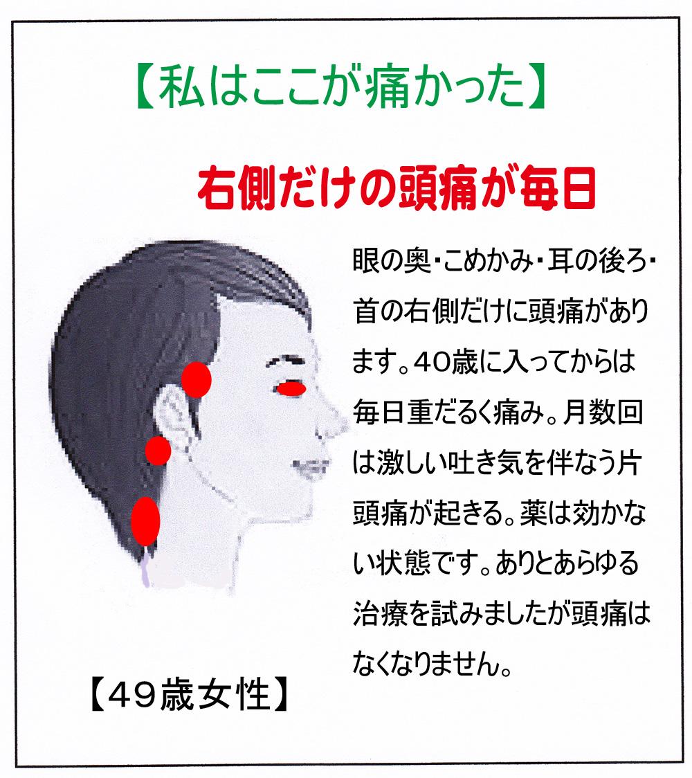 KK(頭痛)